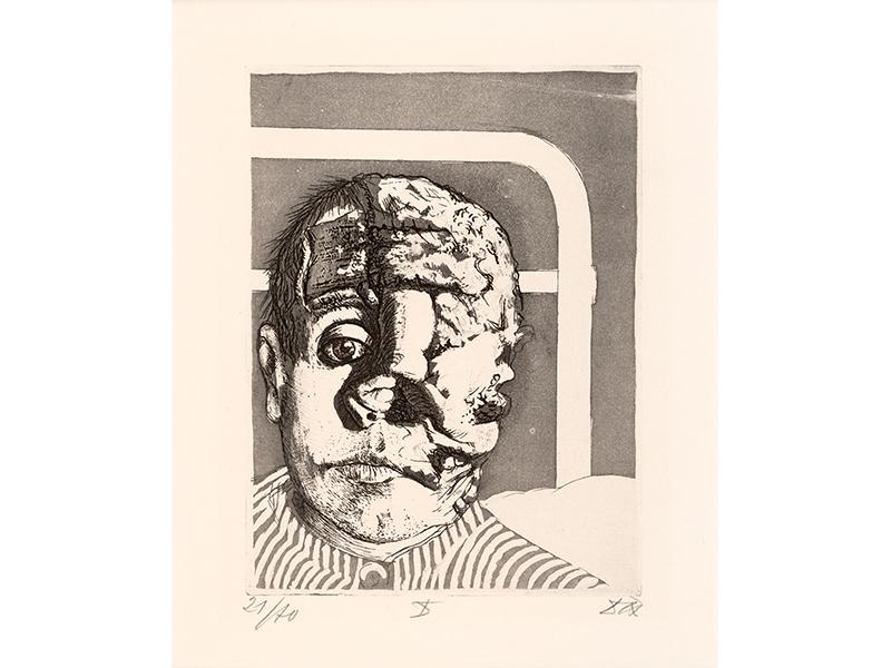 Otto Dix. Transplant, 1924, etching opus VI, 19,9 x 14,9 © (Otto Dix) VG Bild-Kunst, Bonn